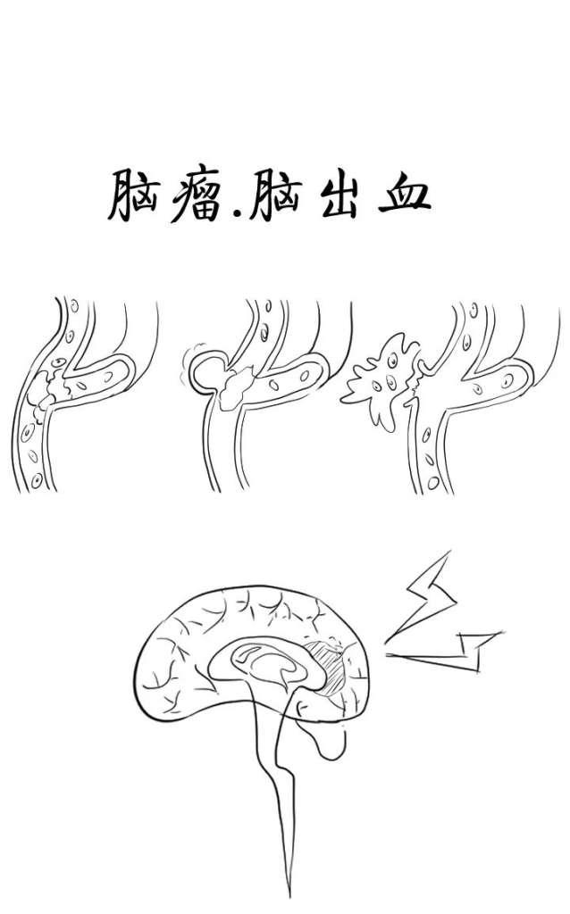 心脑血管疾病成为人类头等问题! 第14张