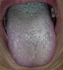 痰湿体质的人如何过冬? 第1张